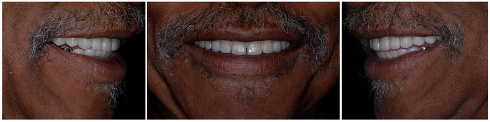 Actual patient smile before and after implant supported bridge placement