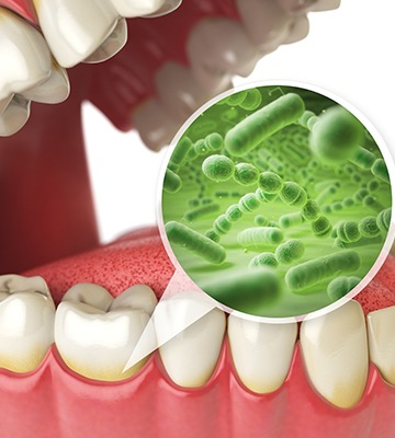 closeup of smile and oral bacteria animation