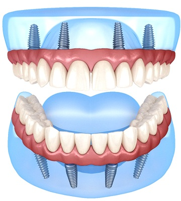 illustration of dental implants supporting upper and lower dentures