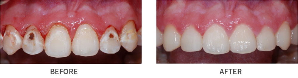 Smile before and after treatment