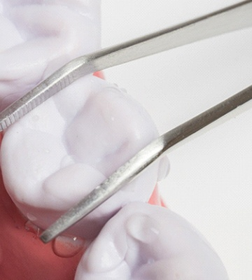 Close-up of simple tooth extraction using forceps