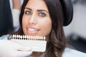 woman with porcelain veneers