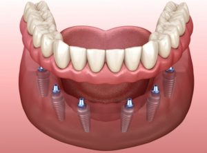 Illustration of implant-supported dentures aiding in jawbone preservation