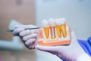 dentist holding a dental implants model